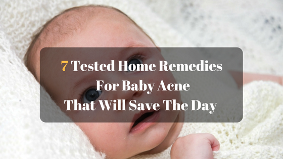 7 Tested Home Remedies For Baby Acne That Will Save The Day